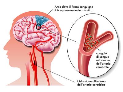 L'ecocolordoppler dei tronchi sovra-aortici (carotidi) e dell'aorta addominale